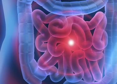 O que são os Pólipos Intestinais? Acompanhe