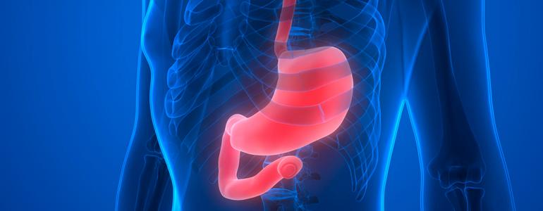 Hemorragia digestiva alta: o que é, como acontece e o que deve ser feito
