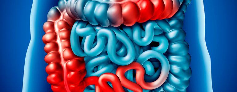 Obstrução intestinal é um problema sério ou não? Entenda