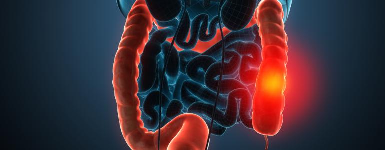 Curiosidades sobre o câncer de intestino: o que é fundamental saber?