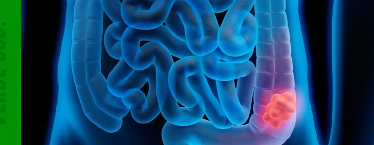 Dados relevantes sobre o câncer de intestino. Acompanhe