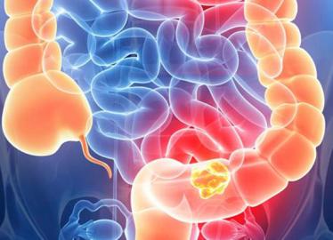 Os sintomas do câncer de intestino podem variar de acordo com a localização dele? Descubra